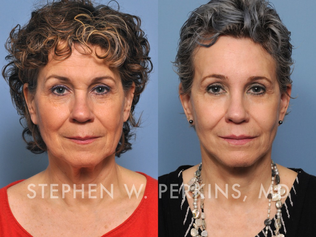 Indianapolis Plastic Surgeons | Dr. Stephen Perkins, MD 01_CB