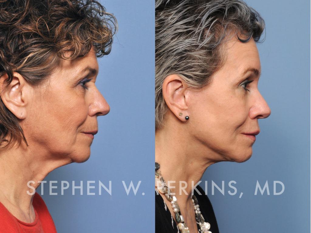 Indianapolis Plastic Surgeons | Dr. Stephen Perkins, MD 02_CB