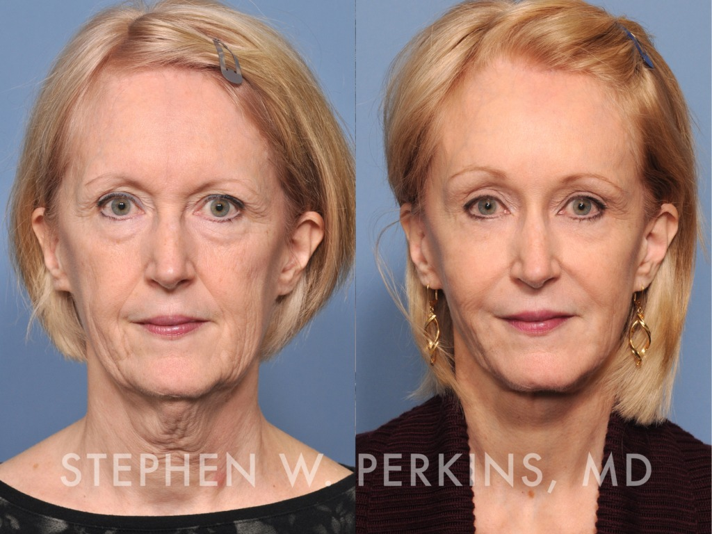 Indianapolis Plastic Surgeons | Dr. Stephen Perkins, MD 03_SB