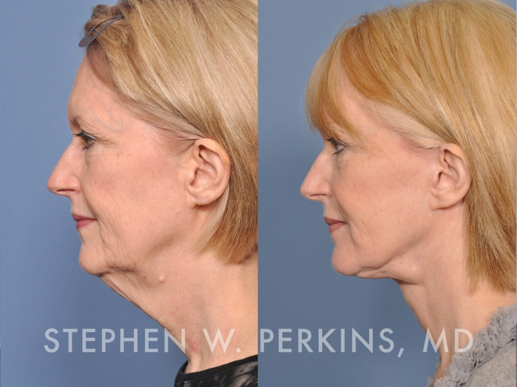 Indianapolis Plastic Surgeons | Dr. Stephen Perkins, MD 04_SB