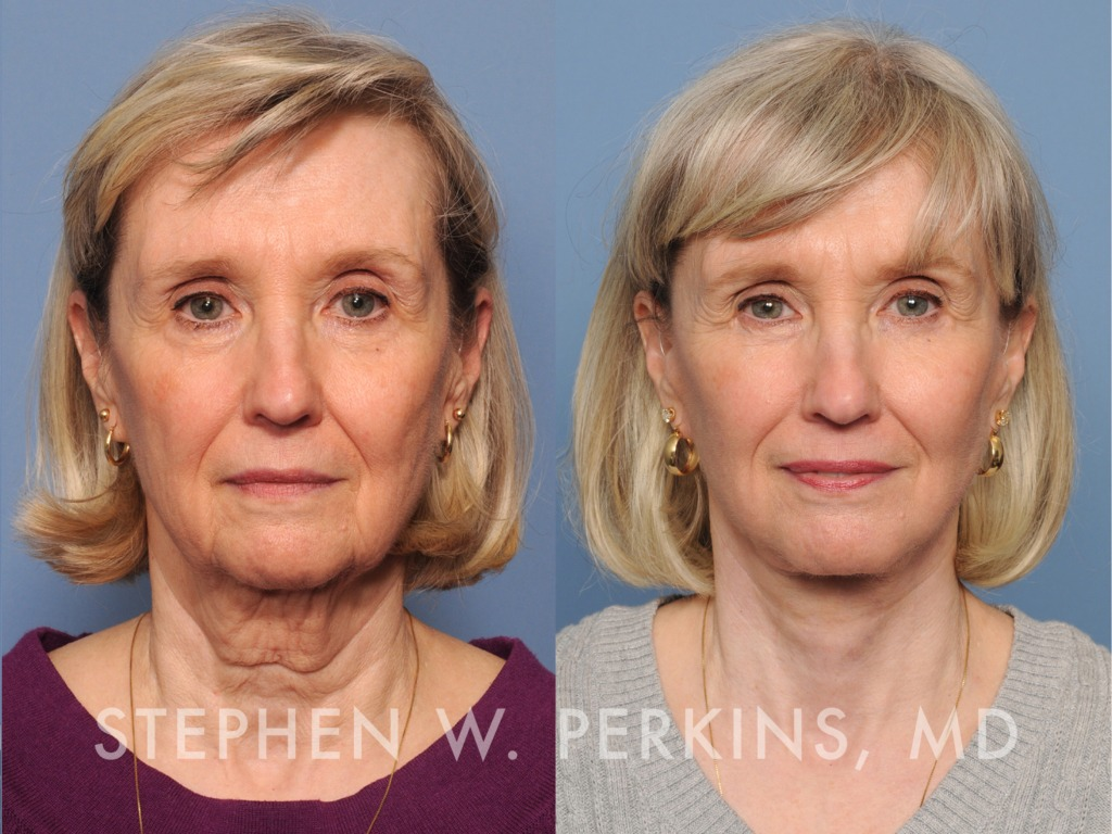 Indianapolis Plastic Surgeons | Dr. Stephen Perkins, MD 05_PK