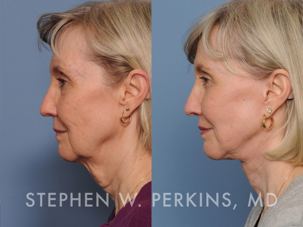 Indianapolis Plastic Surgeons | Dr. Stephen Perkins, MD 06_PK