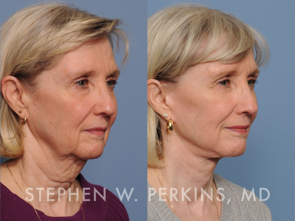 Indianapolis Plastic Surgeons | Dr. Stephen Perkins, MD 07_PK