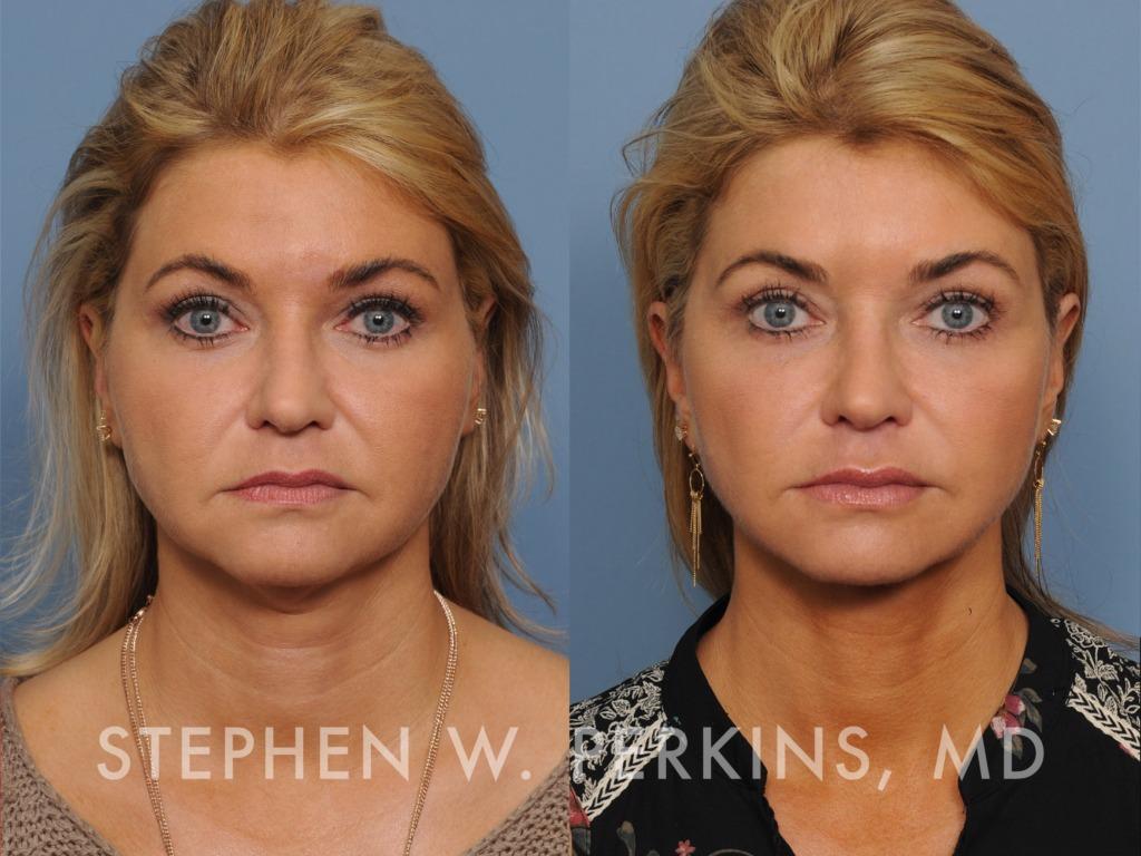 Indianapolis Plastic Surgeons | Dr. Stephen Perkins, MD 08_DW
