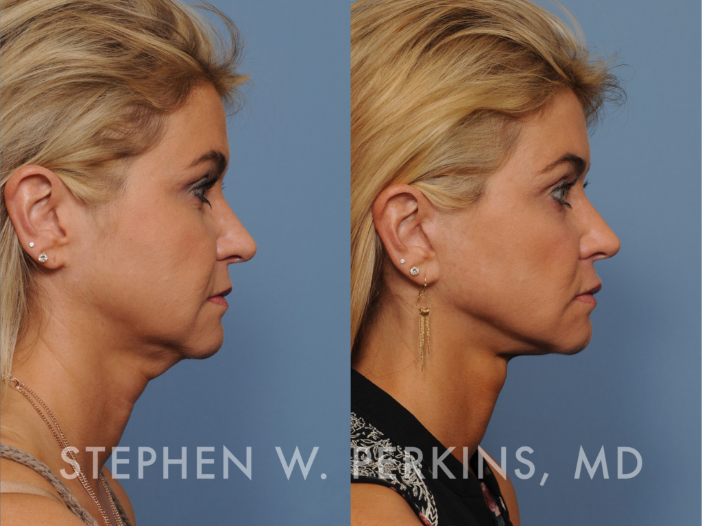 Indianapolis Plastic Surgeons | Dr. Stephen Perkins, MD Dianna