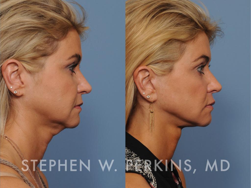 Indianapolis Plastic Surgeons | Dr. Stephen Perkins, MD Dianna