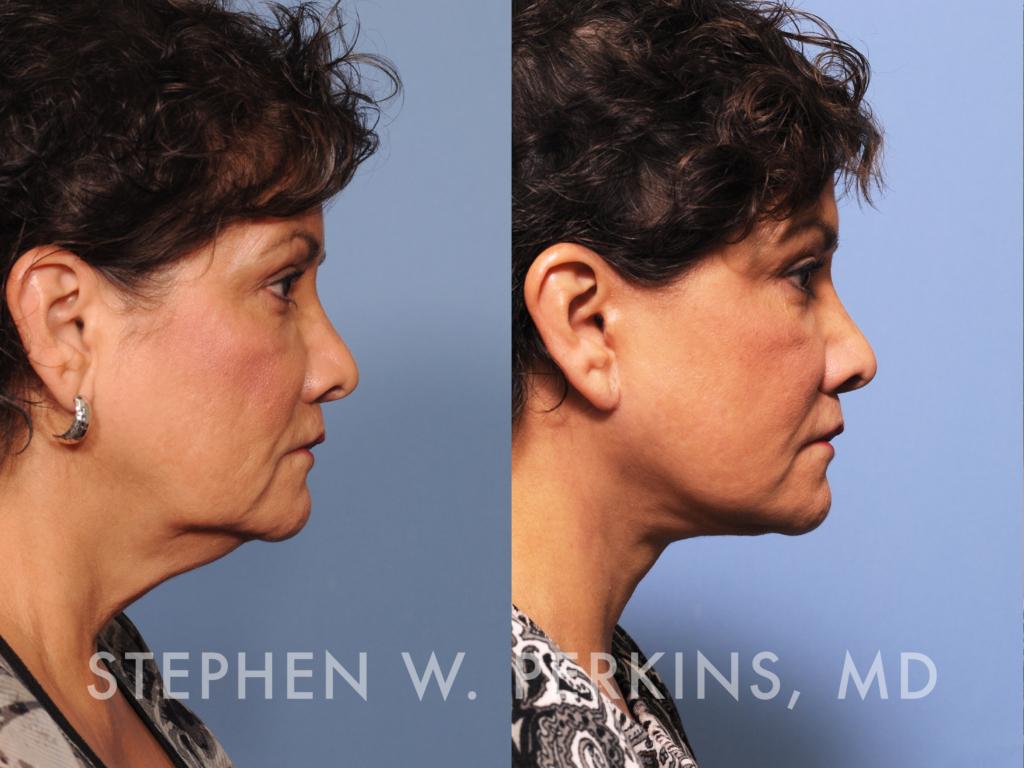 Indianapolis Plastic Surgeons | Dr. Stephen Perkins, MD 14_JT