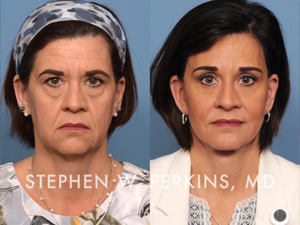 Indianapolis Plastic Surgeons | Dr. Stephen Perkins, MD 15_TB