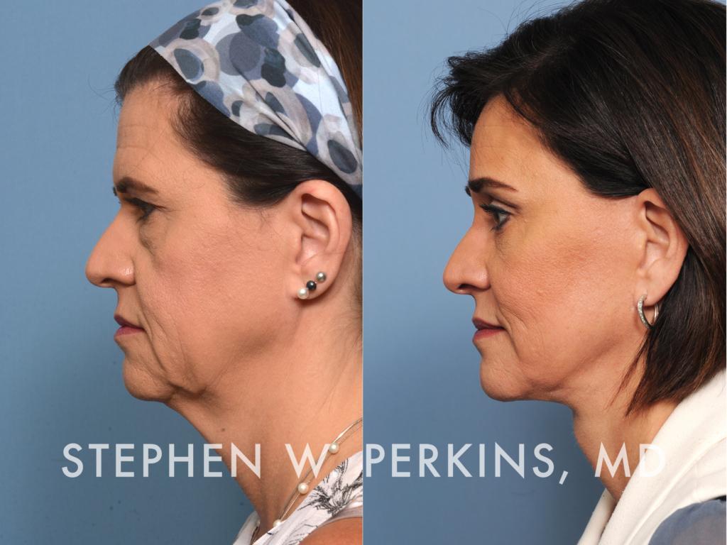 Indianapolis Plastic Surgeons | Dr. Stephen Perkins, MD 16_TB