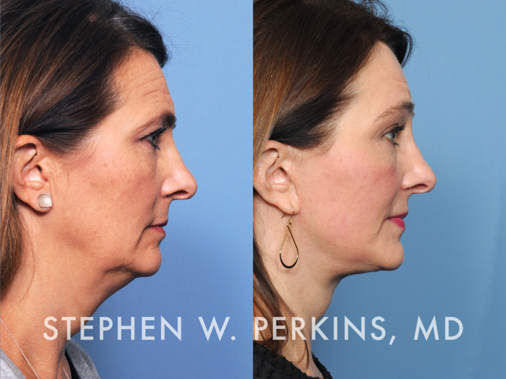 Indianapolis Plastic Surgeons | Dr. Stephen Perkins, MD 18_TC