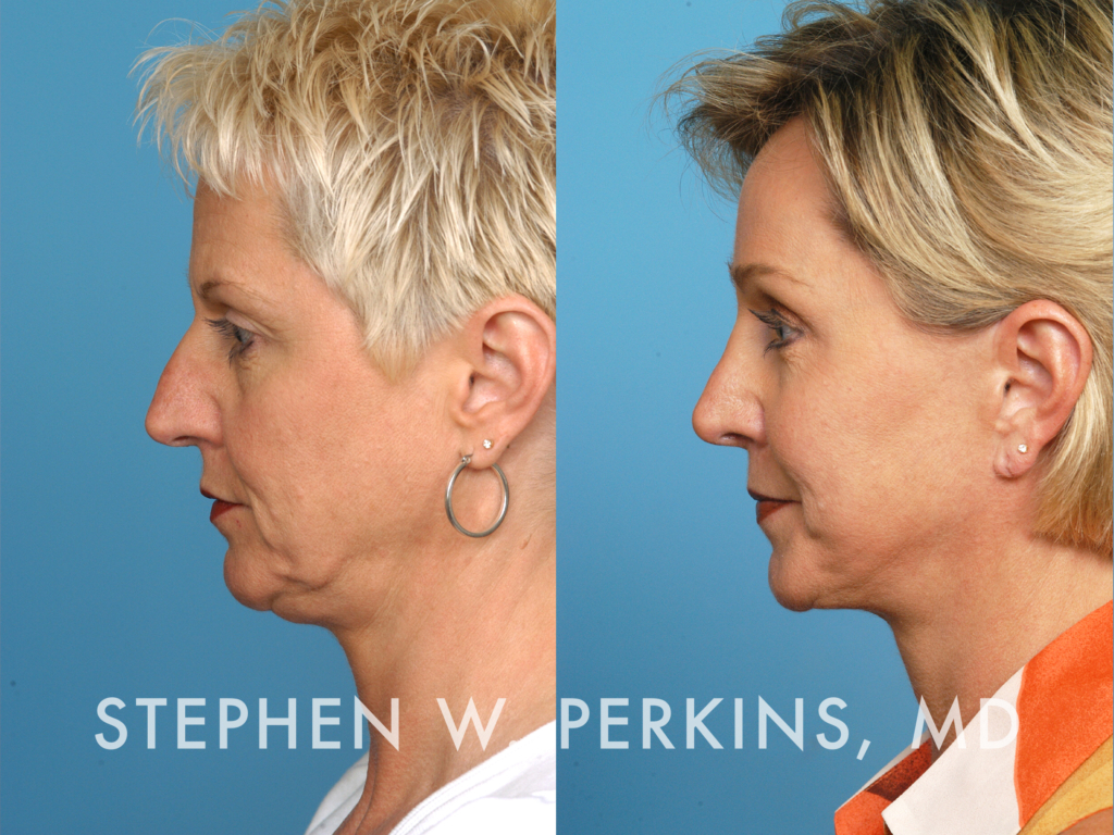Indianapolis Plastic Surgeons | Dr. Stephen Perkins, MD 19_CW