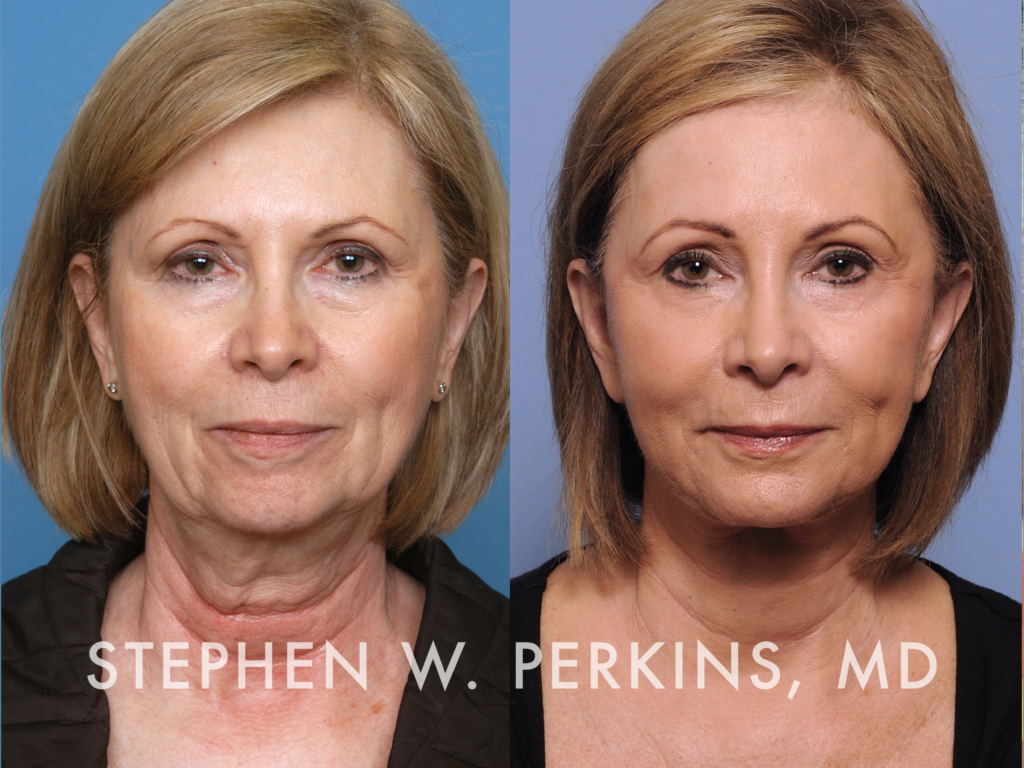 Indianapolis Plastic Surgeons | Dr. Stephen Perkins, MD 20_NC