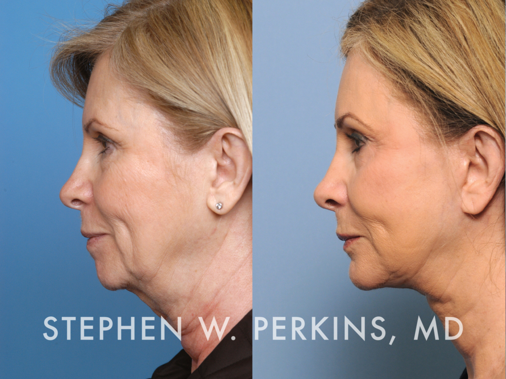 Indianapolis Plastic Surgeons | Dr. Stephen Perkins, MD Nathalie