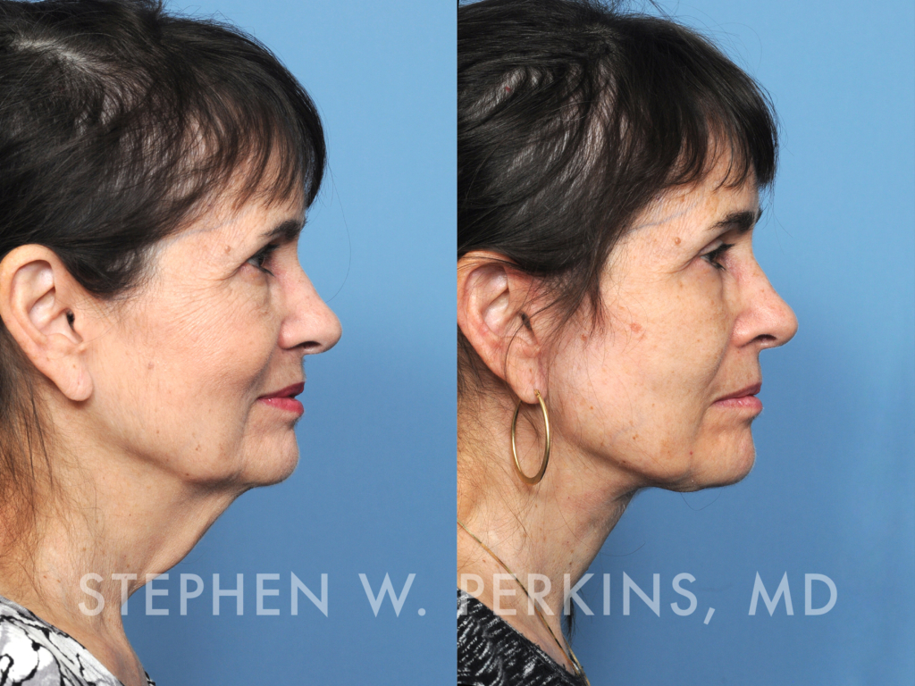 Indianapolis Plastic Surgeons | Dr. Stephen Perkins, MD 22_KH