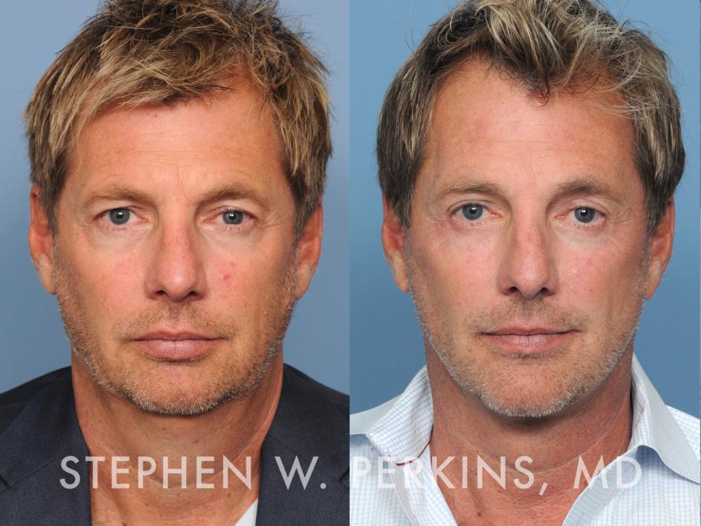 Indianapolis Plastic Surgeons | Dr. Stephen Perkins, MD 25_SW