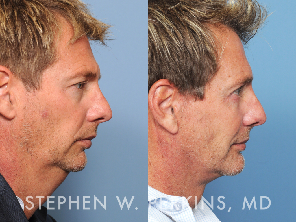 Indianapolis Plastic Surgeons | Dr. Stephen Perkins, MD 26_SW