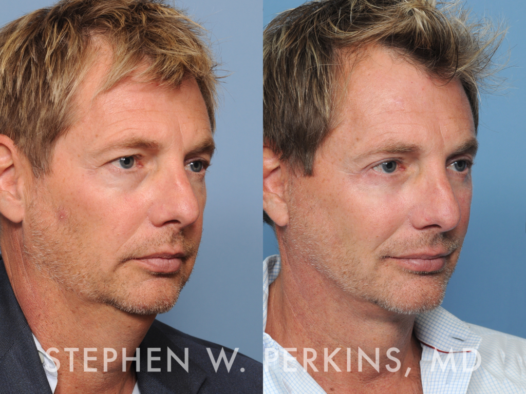 Indianapolis Plastic Surgeons | Dr. Stephen Perkins, MD 27_SW