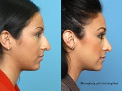 Indianapolis Plastic Surgeons | Dr. Stephen Perkins, MD Today's Nose: What's Changed With Rhinoplasty