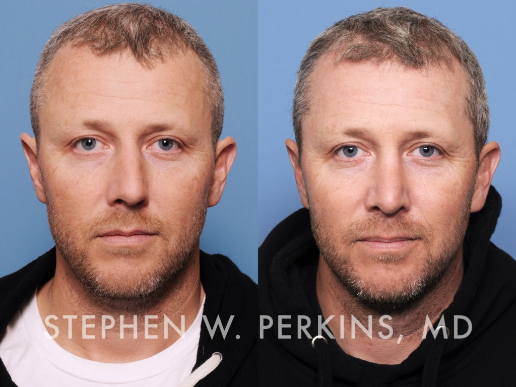 Indianapolis Plastic Surgeons | Dr. Stephen Perkins, MD 01