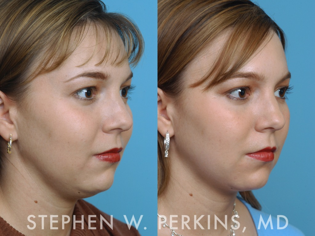 Indianapolis Plastic Surgeons | Dr. Stephen Perkins, MD 01