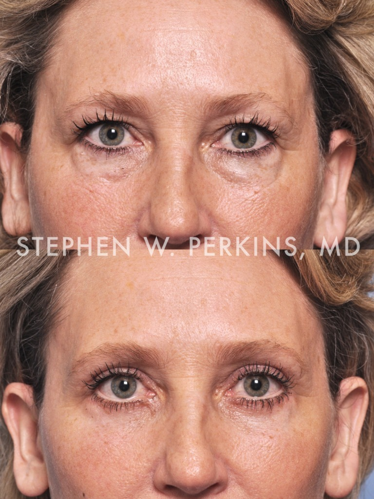 Indianapolis Plastic Surgeons | Dr. Stephen Perkins, MD Gallery