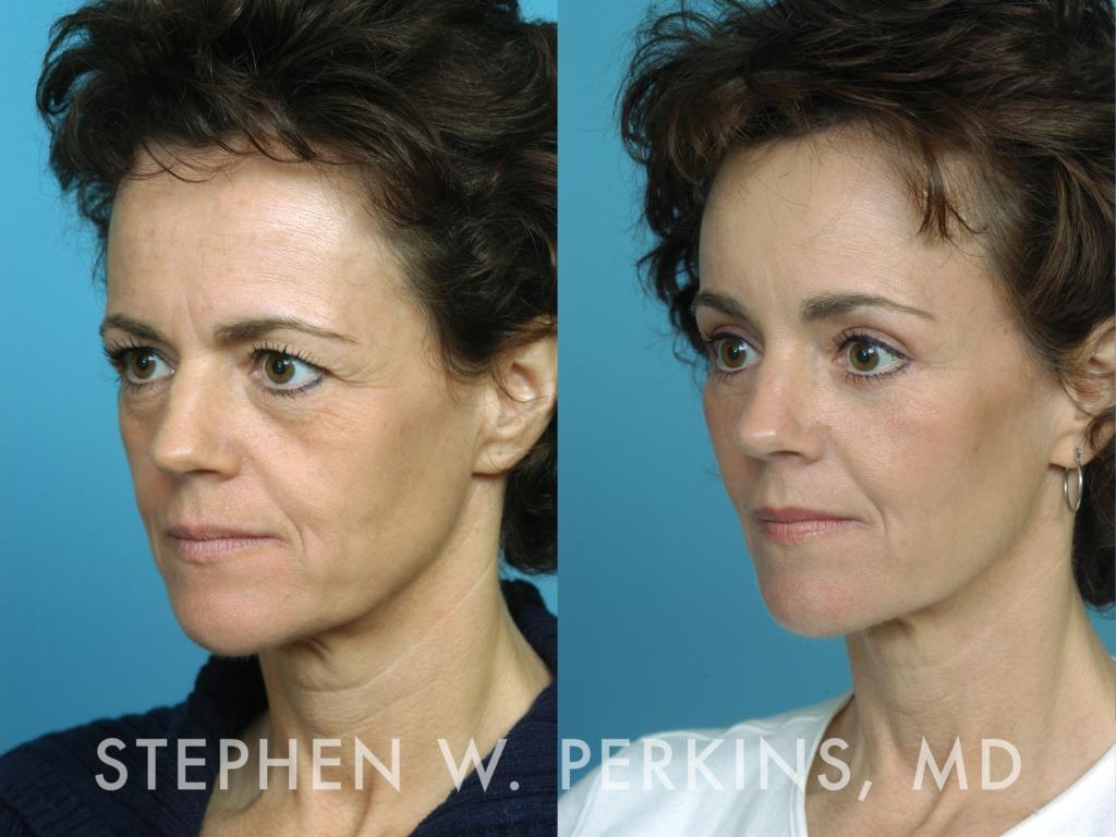Indianapolis Plastic Surgeons | Dr. Stephen Perkins, MD 01_AK