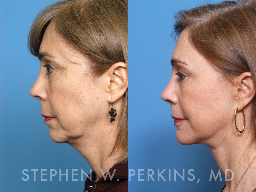 Indianapolis Plastic Surgeons | Dr. Stephen Perkins, MD 01_HB
