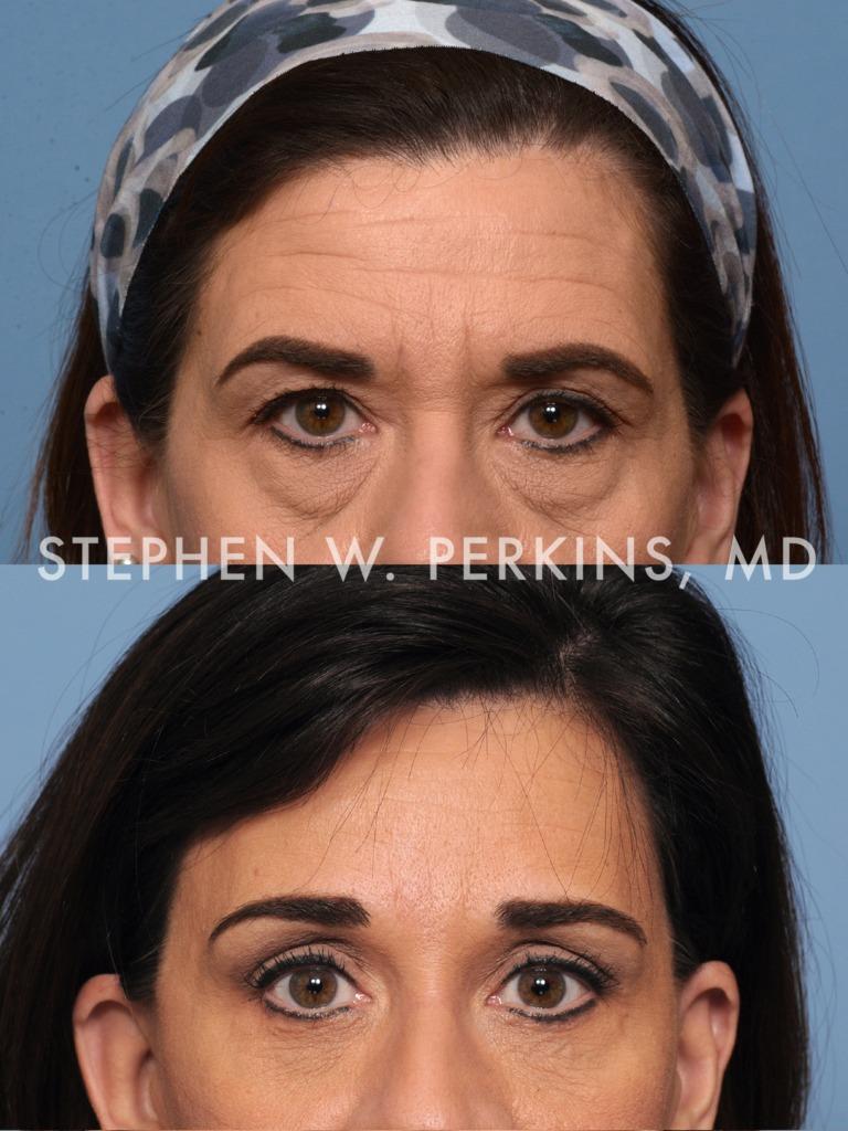 Indianapolis Plastic Surgeons | Dr. Stephen Perkins, MD 01_TBb