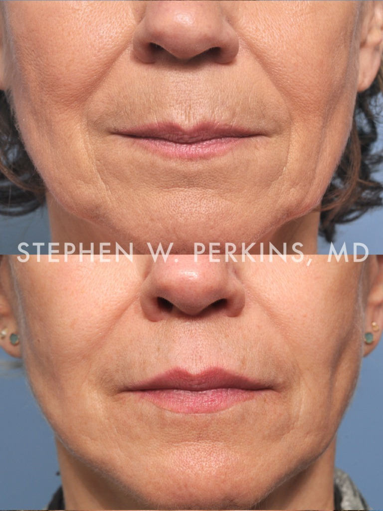 Indianapolis Plastic Surgeons | Dr. Stephen Perkins, MD 01b