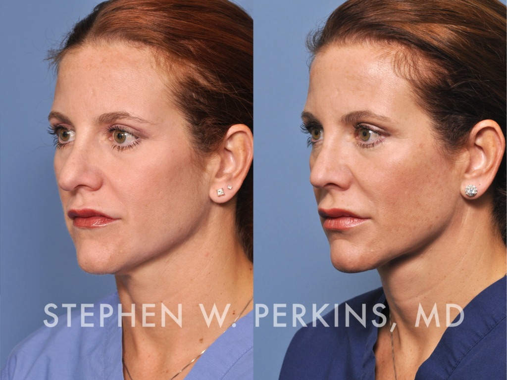 Indianapolis Plastic Surgeons | Dr. Stephen Perkins, MD 02