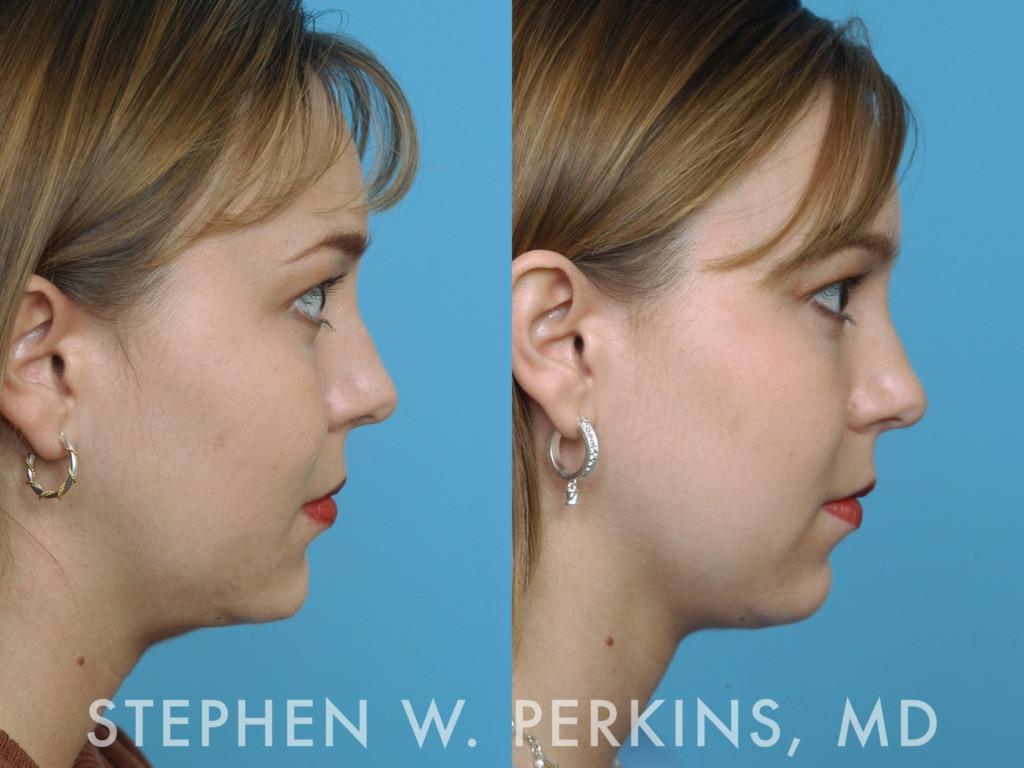 Indianapolis Plastic Surgeons | Dr. Stephen Perkins, MD 02