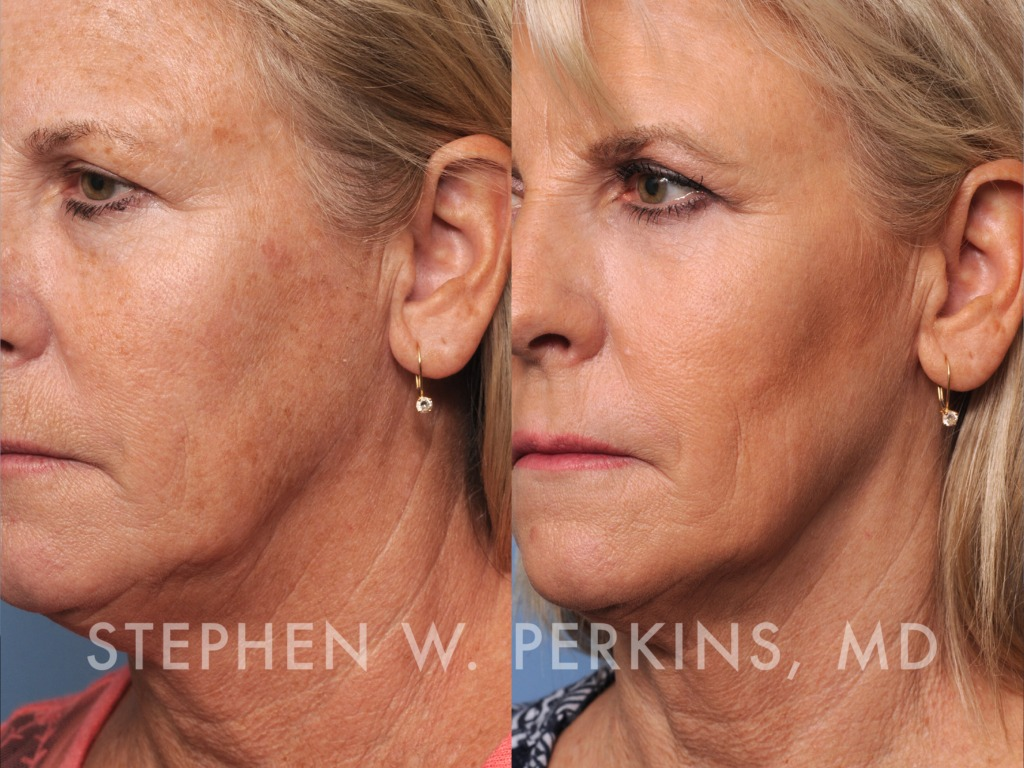 Indianapolis Plastic Surgeons | Dr. Stephen Perkins, MD Yvonne