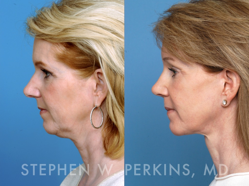 Indianapolis Plastic Surgeons | Dr. Stephen Perkins, MD 02_DB2