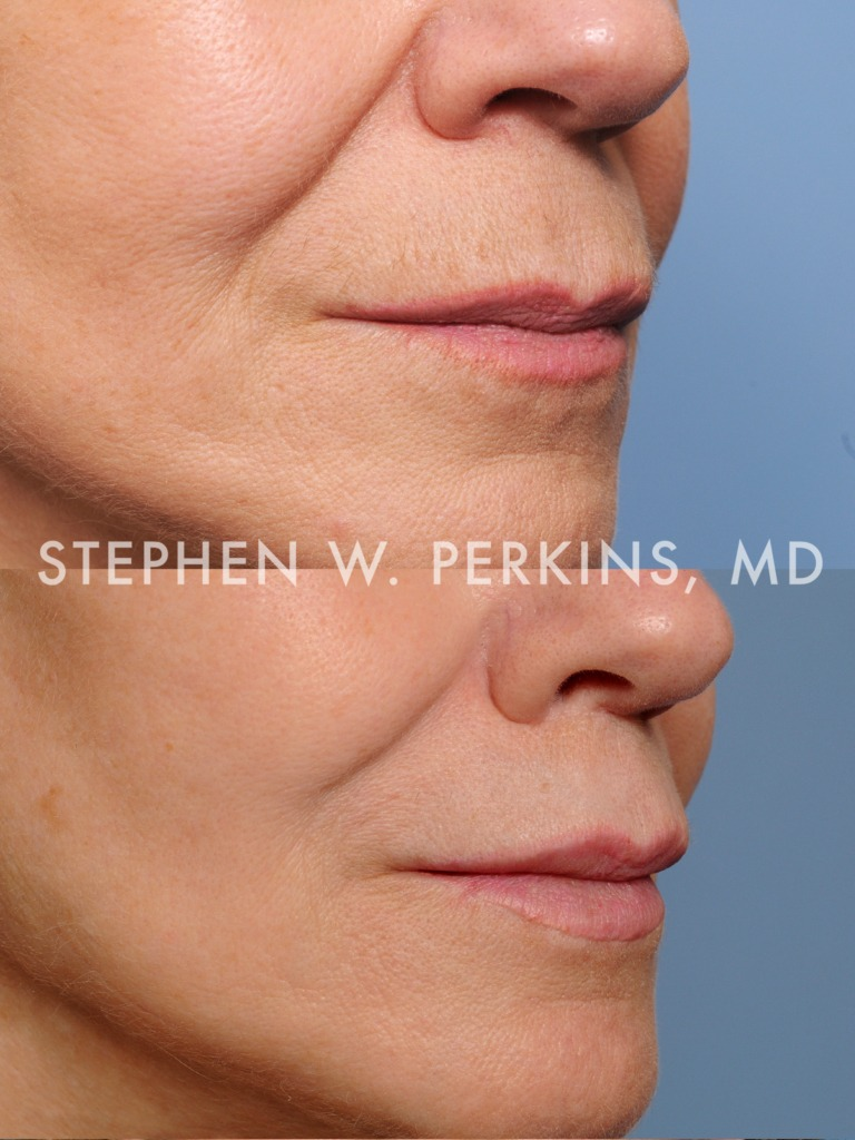 Indianapolis Plastic Surgeons | Dr. Stephen Perkins, MD 02b