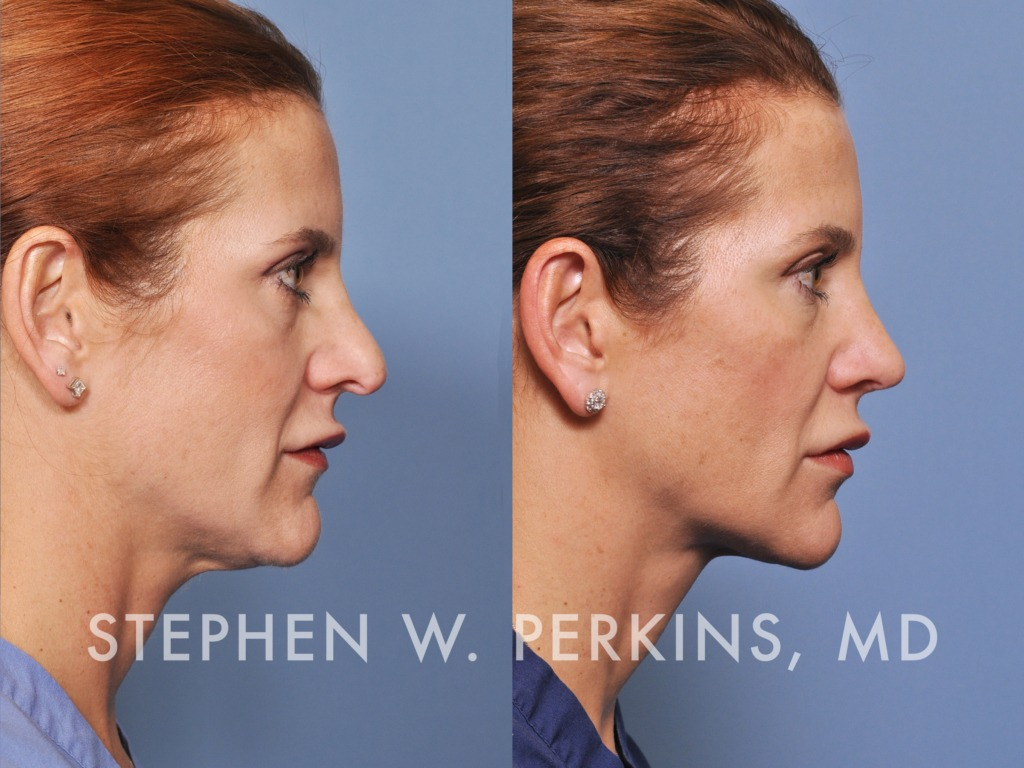Indianapolis Plastic Surgeons | Dr. Stephen Perkins, MD 03