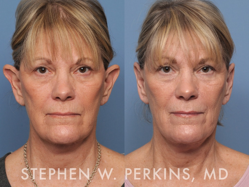 Indianapolis Plastic Surgeons | Dr. Stephen Perkins, MD Otoplasty