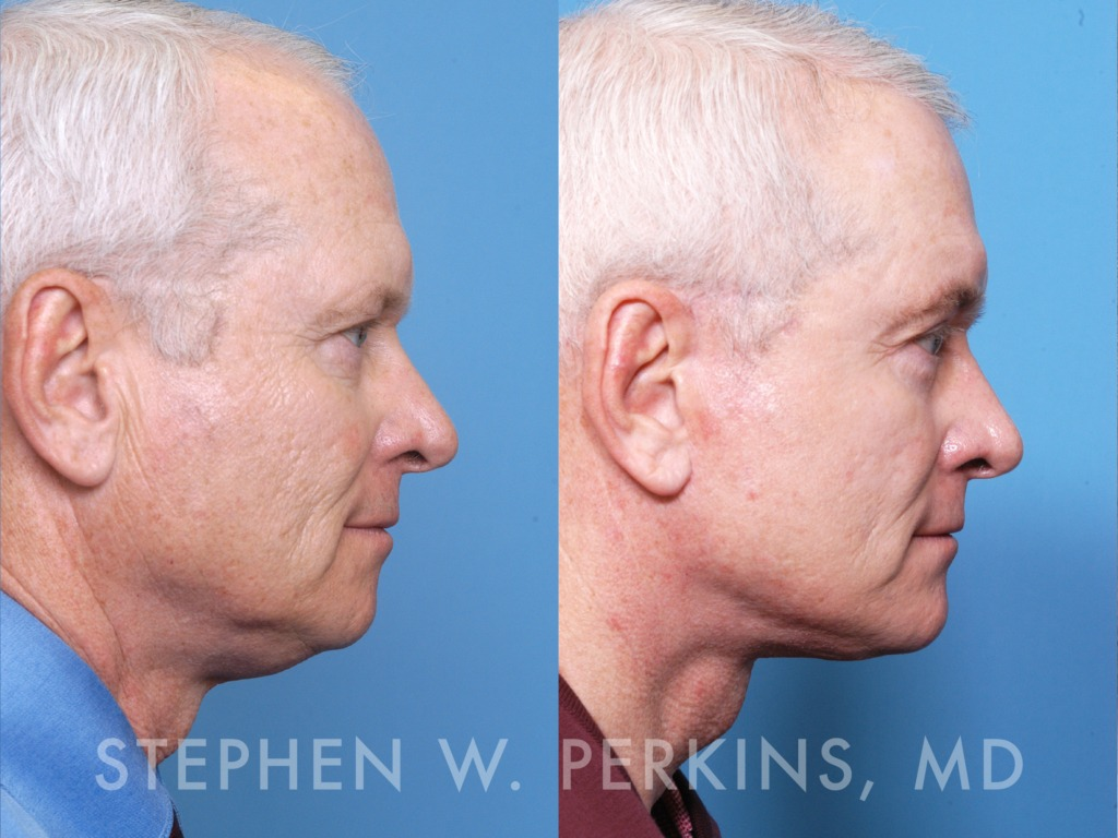 Indianapolis Plastic Surgeons | Dr. Stephen Perkins, MD 03_WD2
