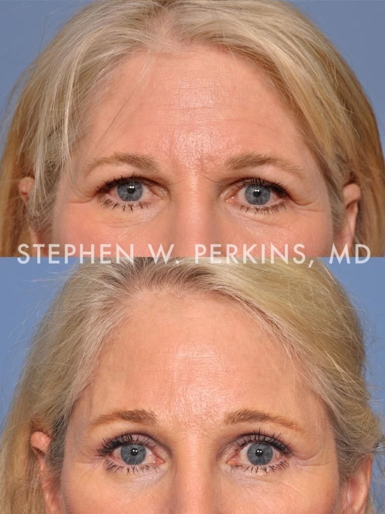 Indianapolis Plastic Surgeons | Dr. Stephen Perkins, MD 03b
