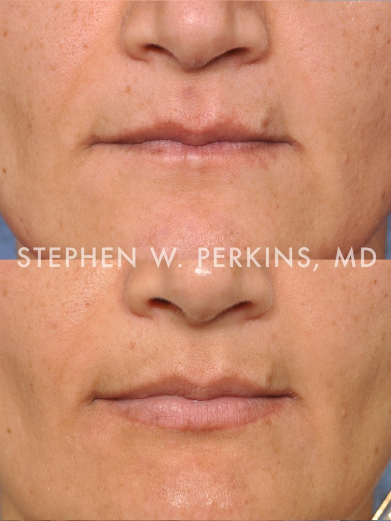 Indianapolis Plastic Surgeons | Dr. Stephen Perkins, MD 03b