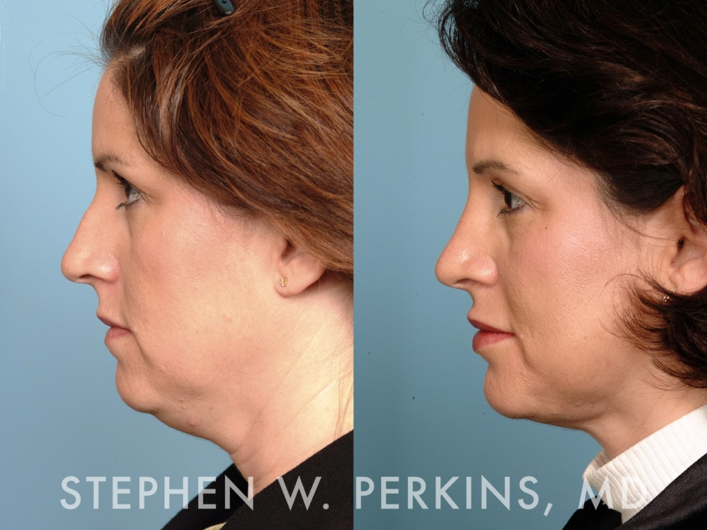 Indianapolis Plastic Surgeons | Dr. Stephen Perkins, MD 04