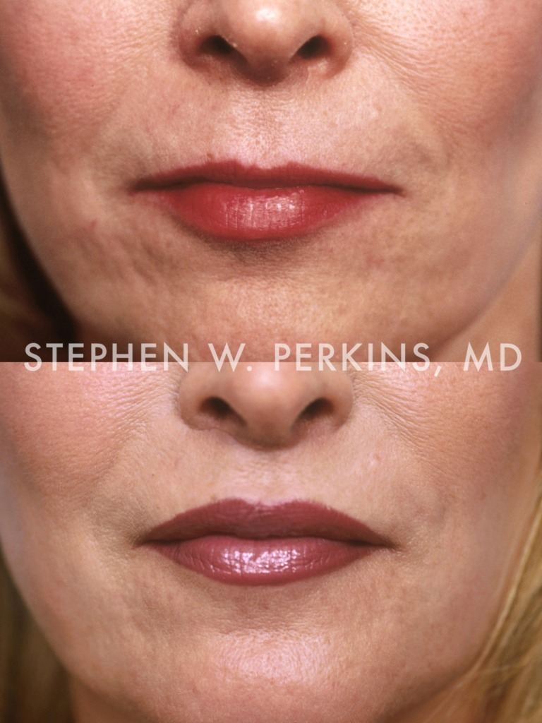 Indianapolis Plastic Surgeons | Dr. Stephen Perkins, MD 04b