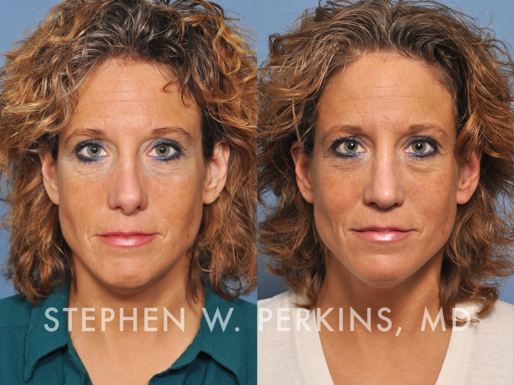 Indianapolis Plastic Surgeons | Dr. Stephen Perkins, MD 05