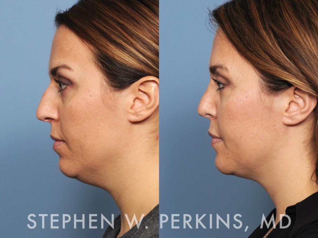 Indianapolis Plastic Surgeons | Dr. Stephen Perkins, MD 05