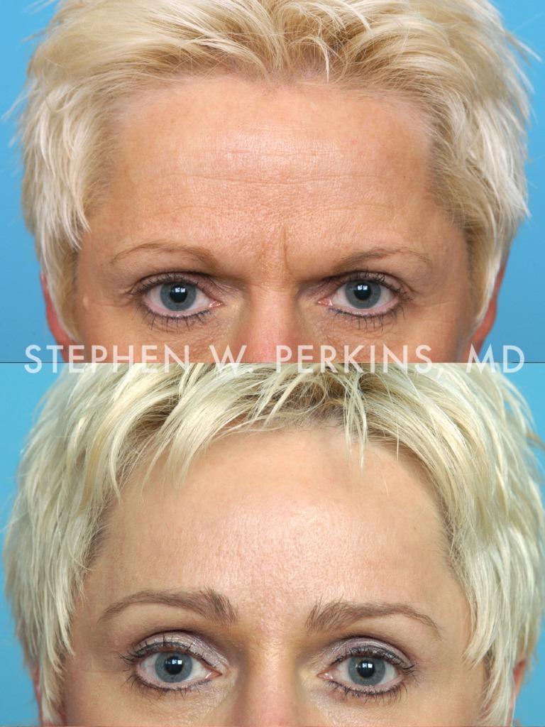 Indianapolis Plastic Surgeons | Dr. Stephen Perkins, MD 05_CWb