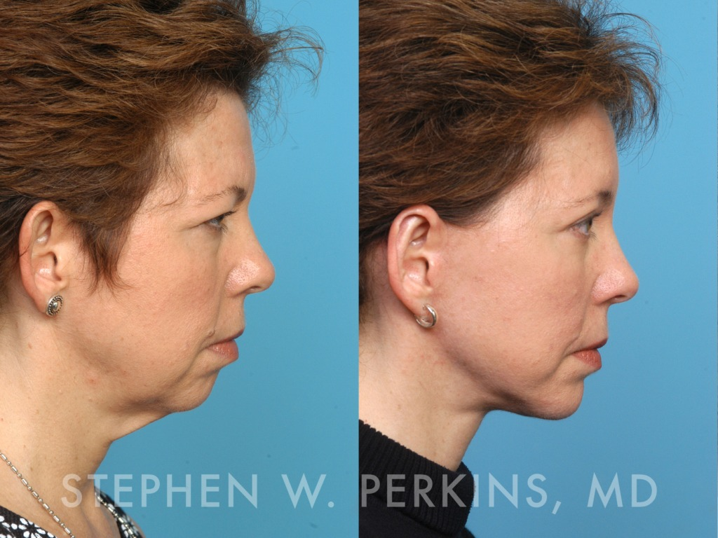 Indianapolis Plastic Surgeons | Dr. Stephen Perkins, MD 05_JE2