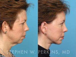 Indianapolis Plastic Surgeons | Dr. Stephen Perkins, MD 05_JE2