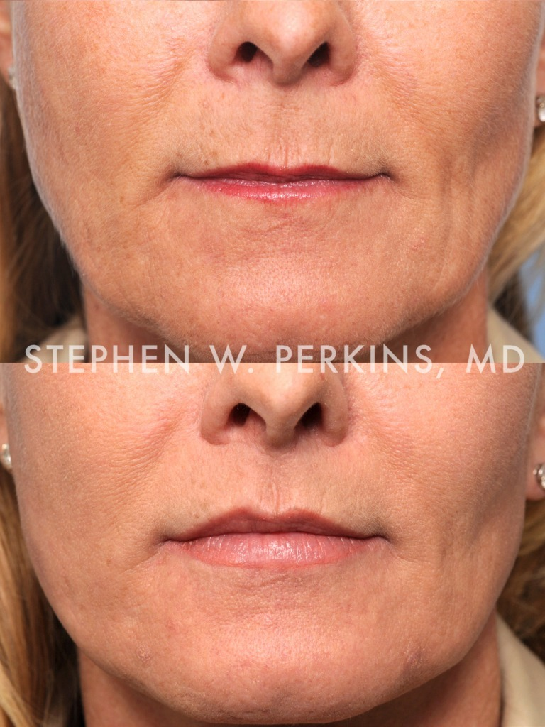 Indianapolis Plastic Surgeons | Dr. Stephen Perkins, MD 05b
