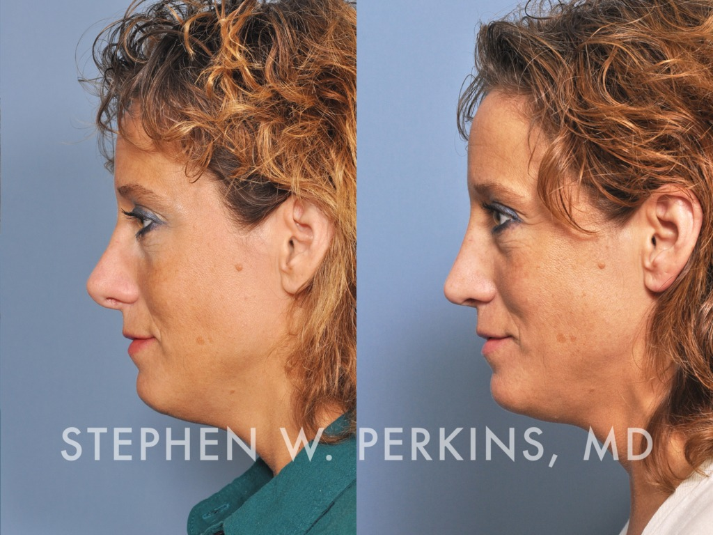 Indianapolis Plastic Surgeons | Dr. Stephen Perkins, MD 06