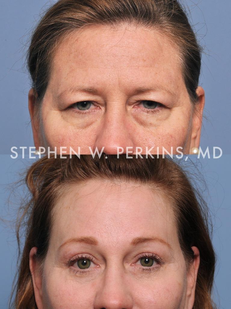 Indianapolis Plastic Surgeons | Dr. Stephen Perkins, MD 06b