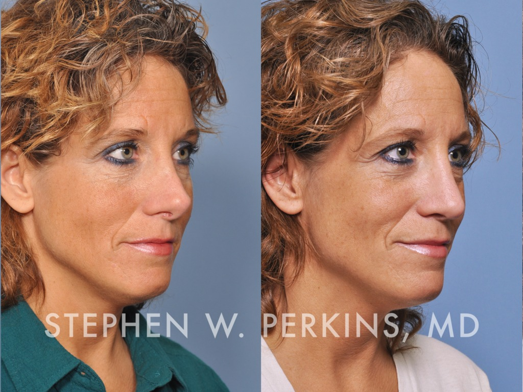 Indianapolis Plastic Surgeons | Dr. Stephen Perkins, MD 07